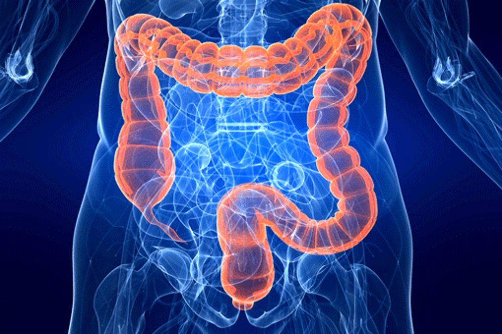 Tumore al colon